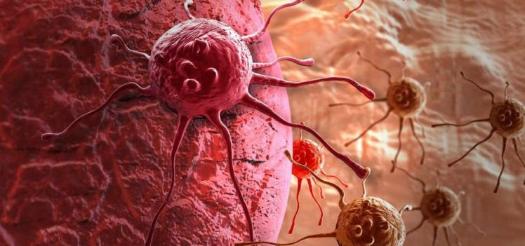 los-nuevos-diagnosticos-de-cancer-aumentan-ano-tras-ano-en-todo-el-mundo